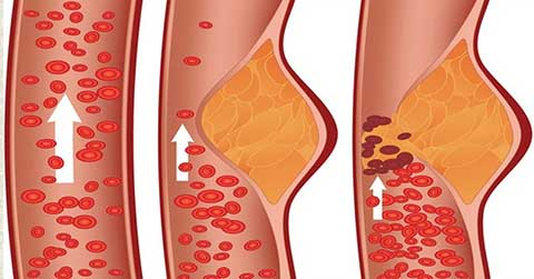 Niacin Blood flow